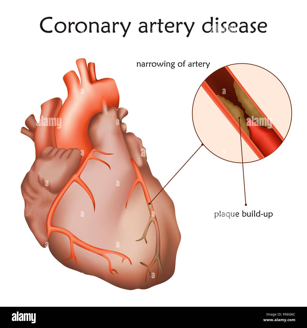 Coronary artery disease, illustration. A blocked coronary artery has led to heart muscle damage. - Stock Image