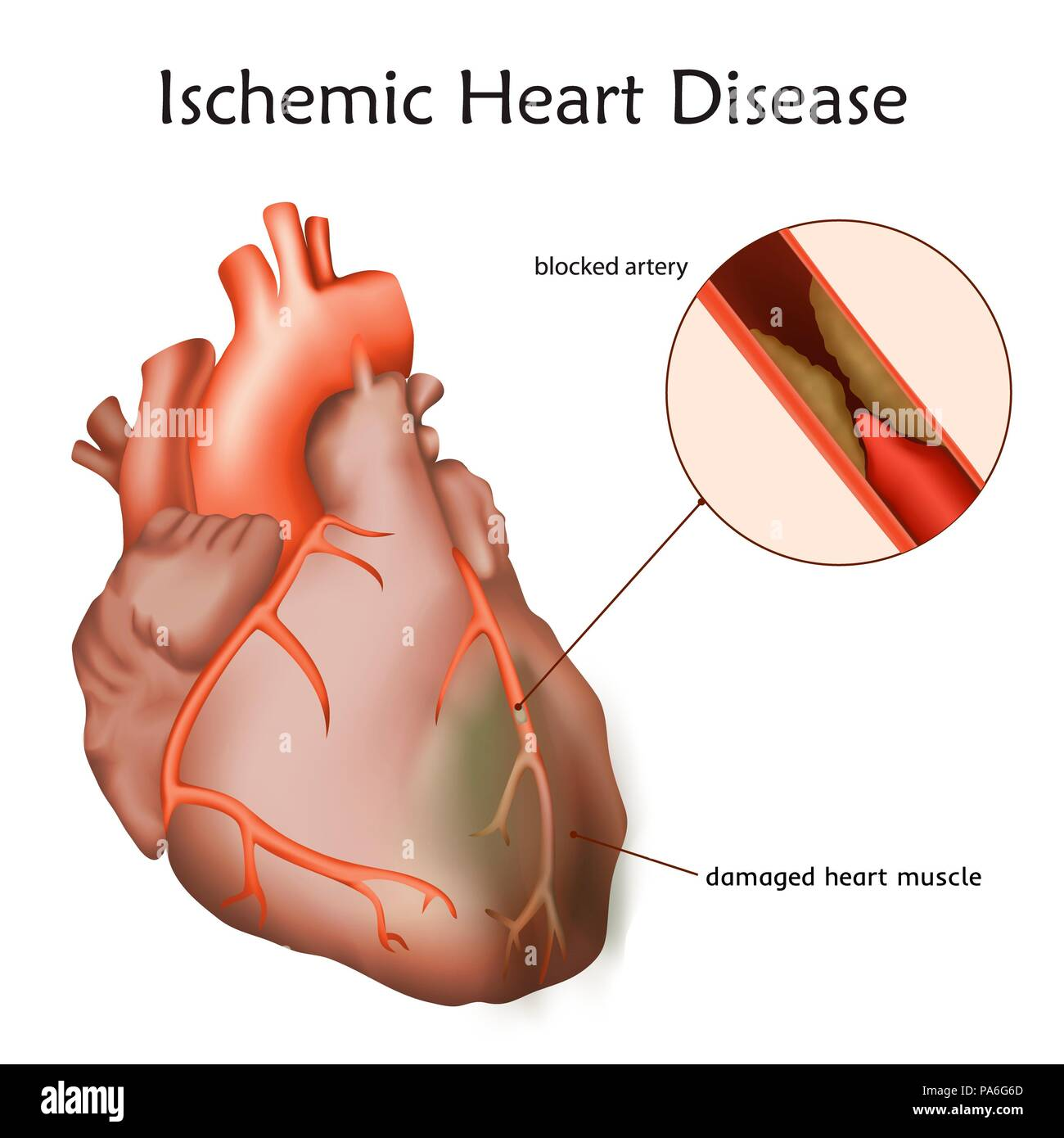 Ischemic heart disease, illustration. A blocked coronary artery has led to heart muscle damage. - Stock Image