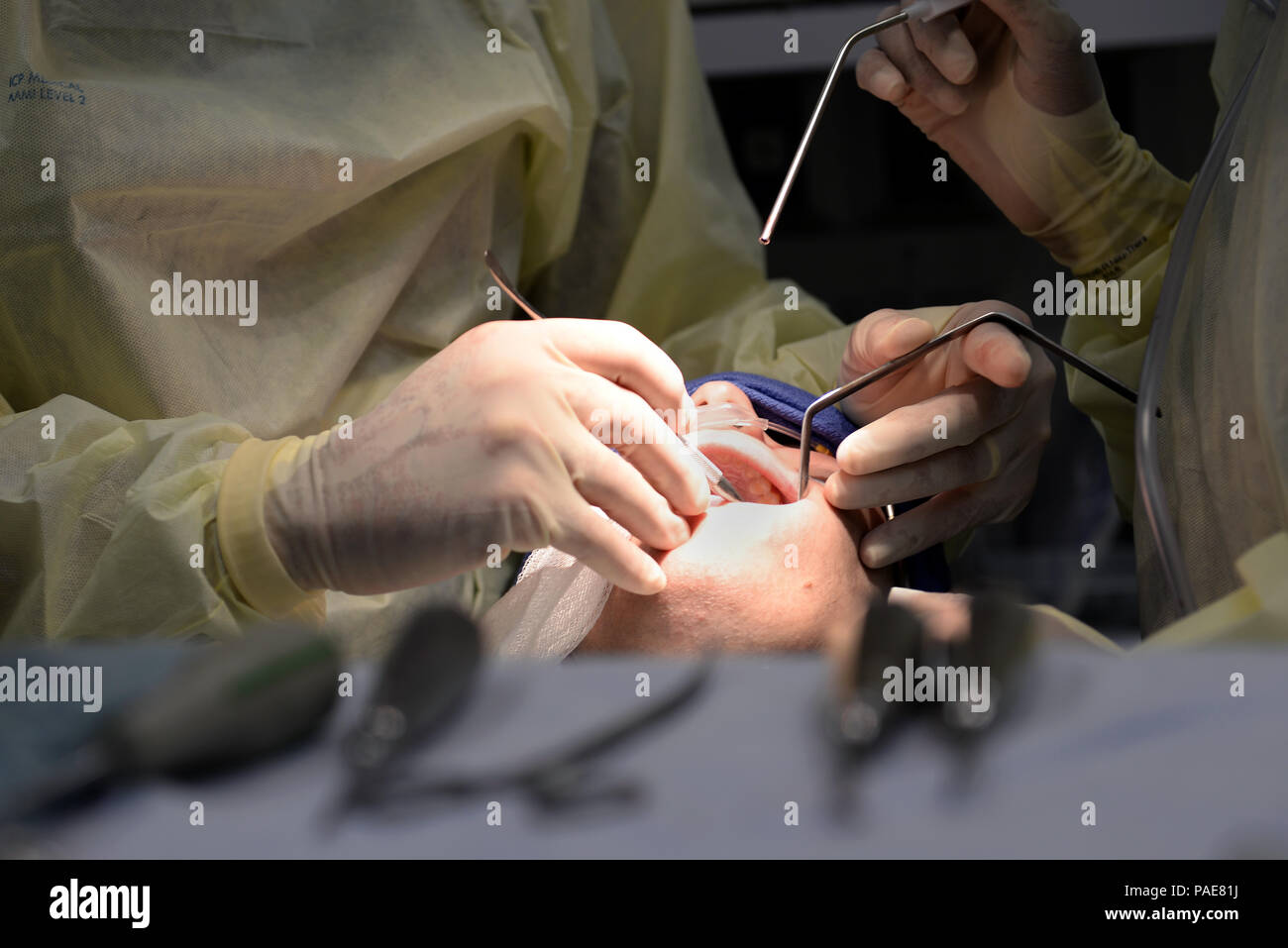 U.S. Air Force Airmen assigned to the 633rd Medical Group, perform oral surgery at Langley Air Force Base, Va., March 17, 2016. In addition to wisdom teeth removal, Langley's oral surgeons can perform corrective jaw surgery, obstructive sleep apnea surgery, bone grafting, repair of complex lacerations of the head and neck and soft-tissue biopsies of the face. (U.S. Air Force photo by Airman 1st Class Kaylee Dubois) - Stock Image