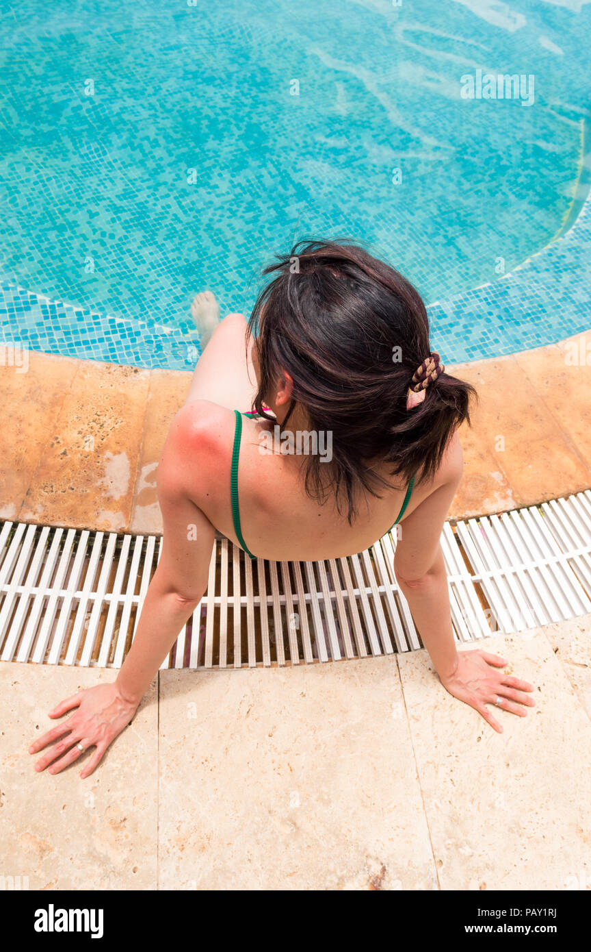 Young woman with red sunburned skin on her shoulder sitting near swimming pool. Sunburn concept. - Stock Image