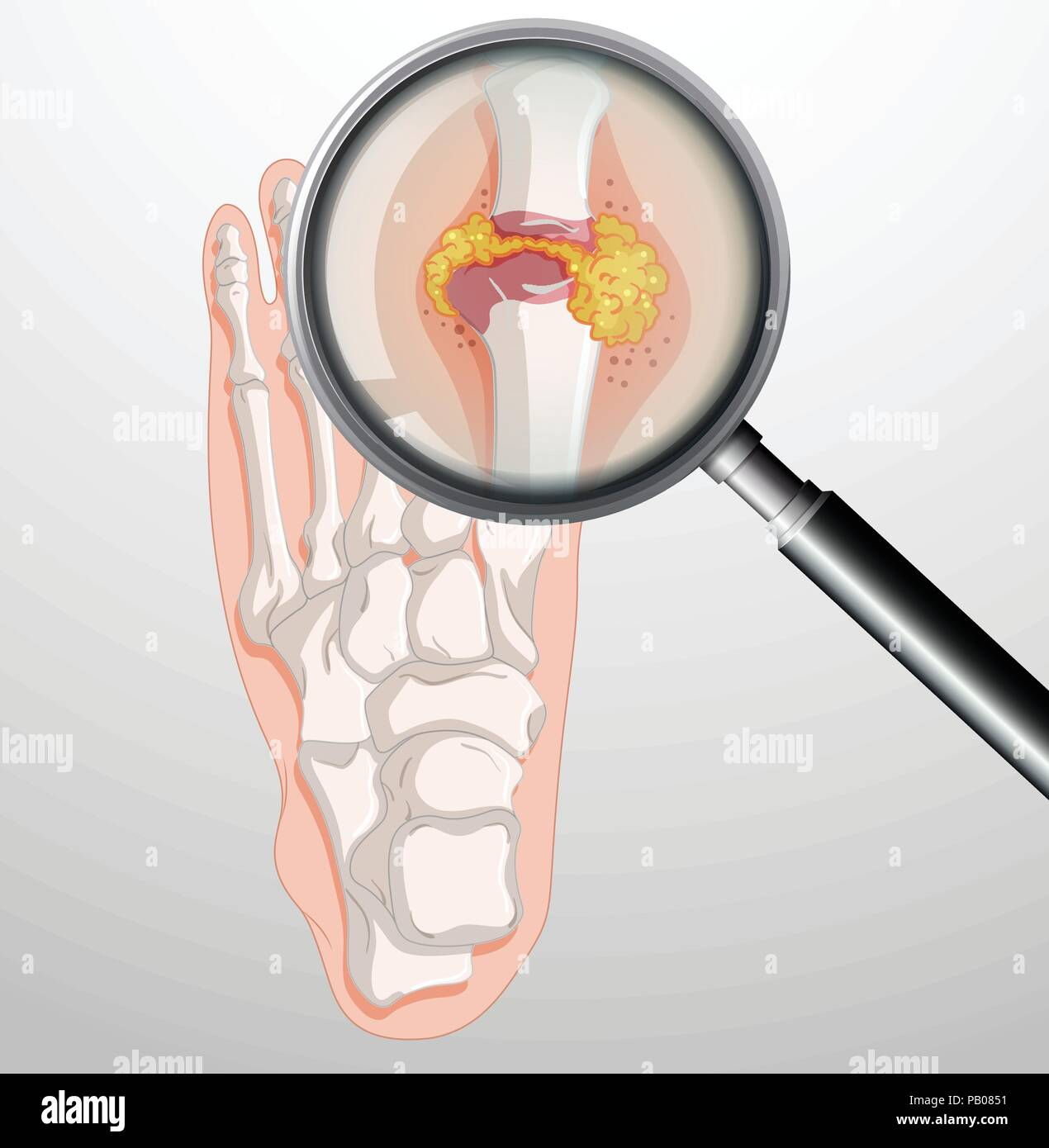 Human feet with gout illustration - Stock Vector