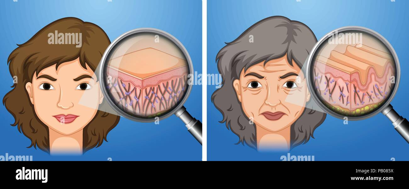 Female younger skin and aging skin illustration - Stock Vector