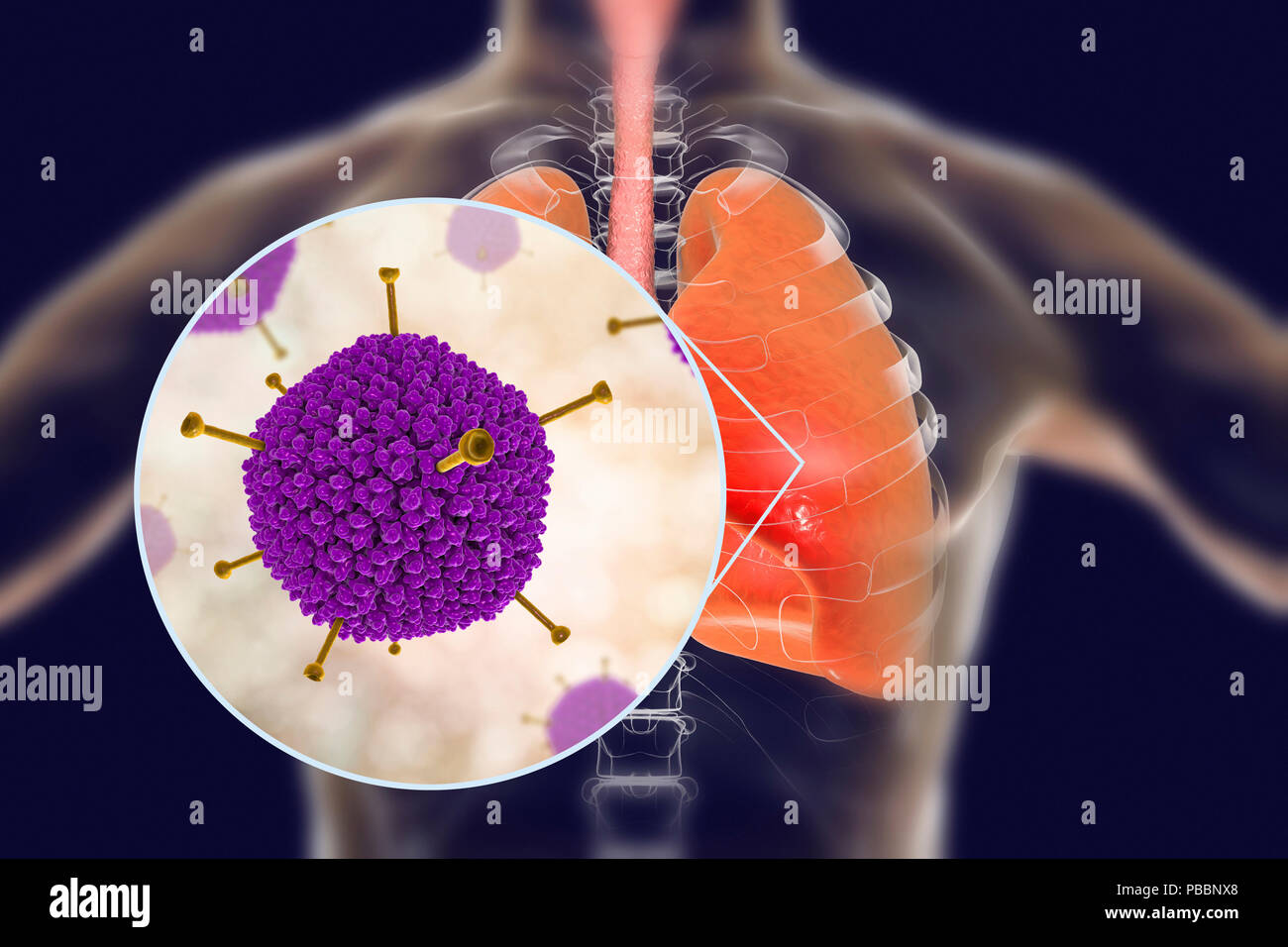 Adenoviruses infecting human lungs, computer illustration. Adenoviruses are DNA-viruses that most commonly infect the upper respiratory tract, eyes and intestine. Occasionally they can cause lower respiratory tract infection (pneumonia), especially in children and immunocompromised patients. - Stock Image