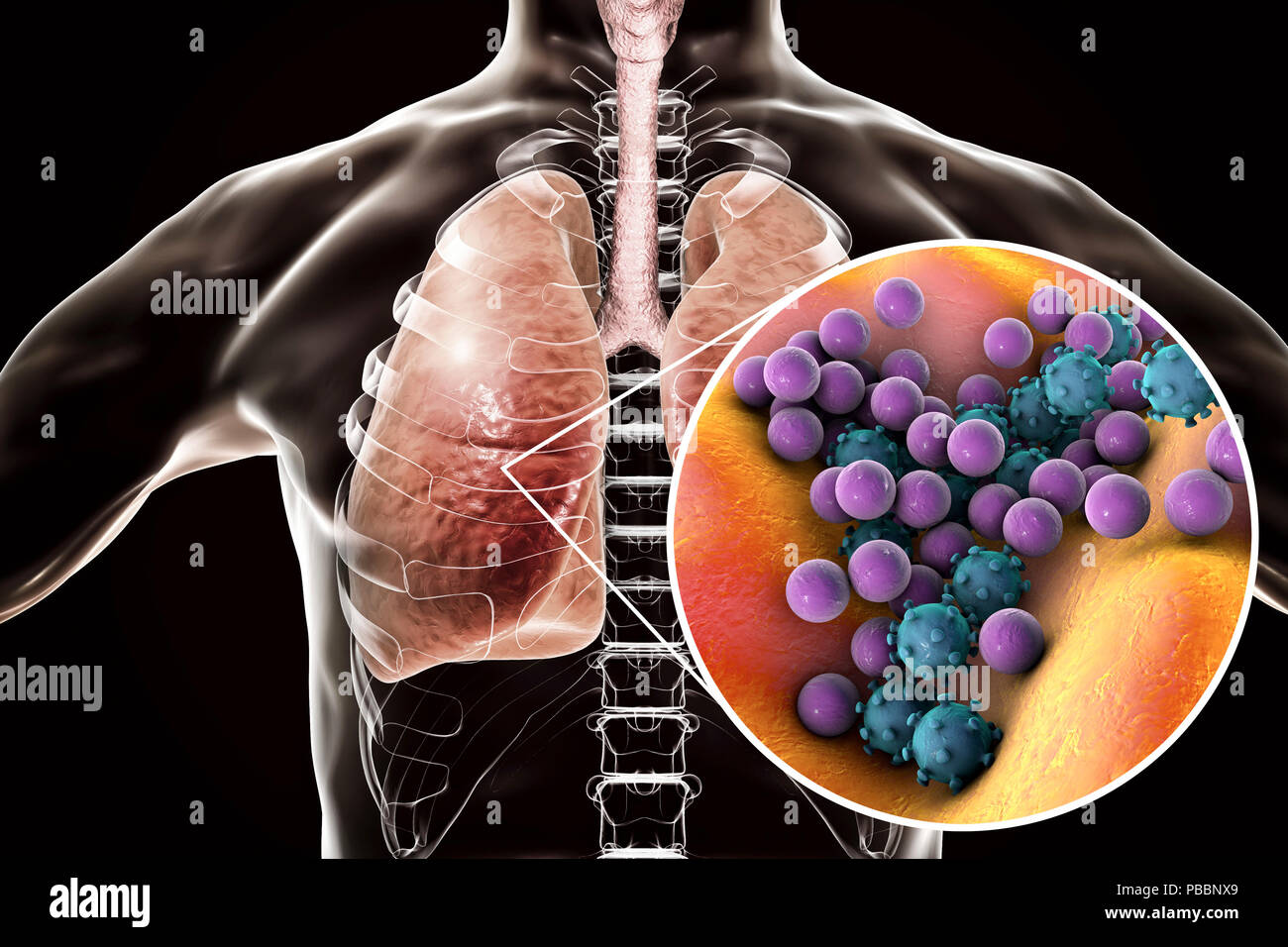 Pneumonia of mixed etiology, conceptual illustration. Human lungs and close-up view of bacteria and viruses, two of the causative agents of pneumonia. - Stock Image