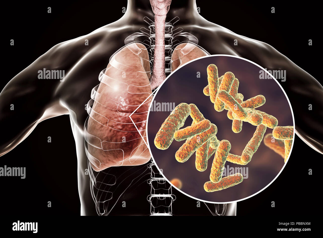 Bacterial pneumonia, conceptual illustration. Human lungs and close-up view of bacteria, one of the causative agents of pneumonia. - Stock Image