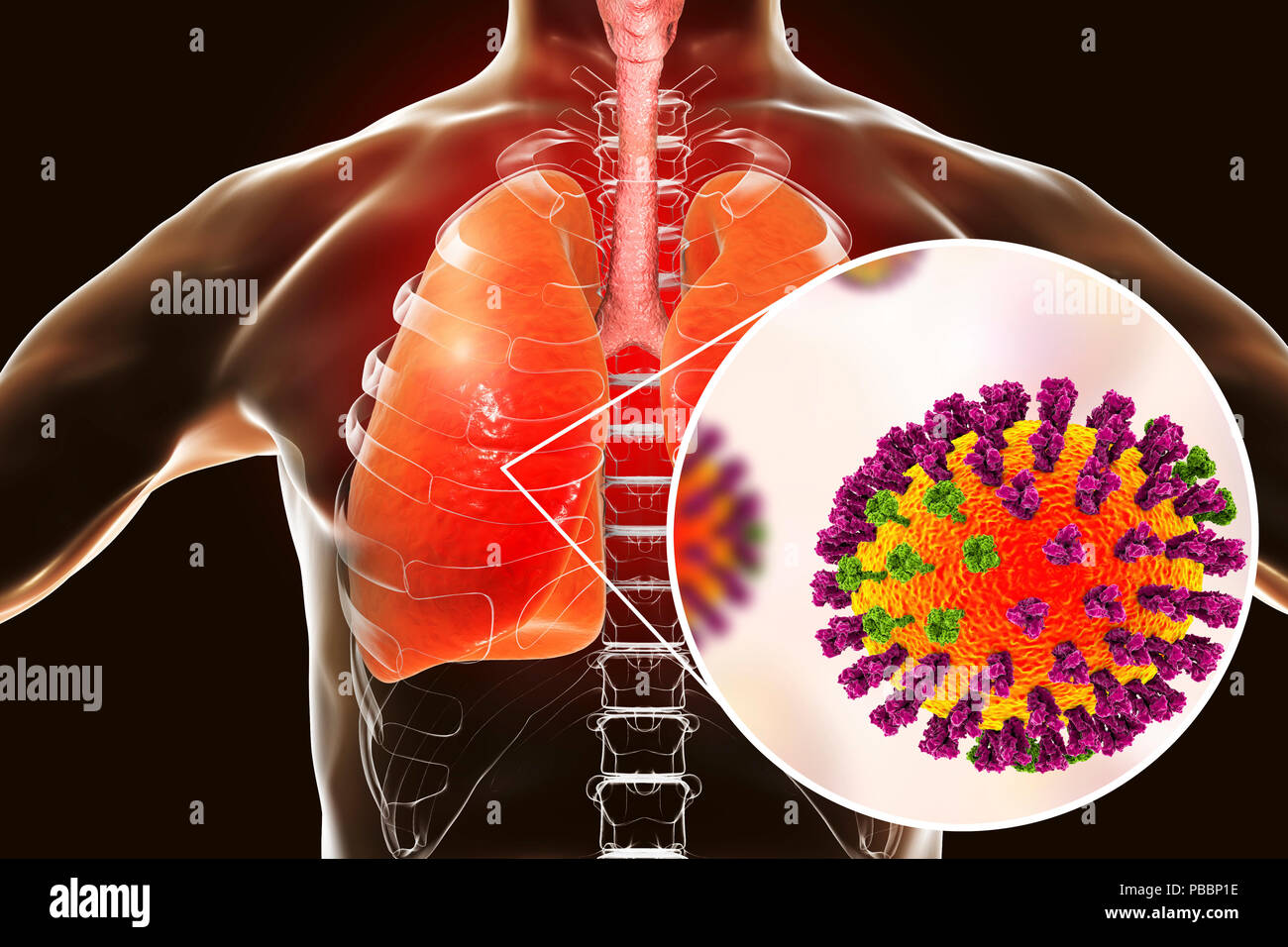 Pneumonia caused by flu, computer illustration. Pneumonia is one of the common complications of a flu infection. - Stock Image