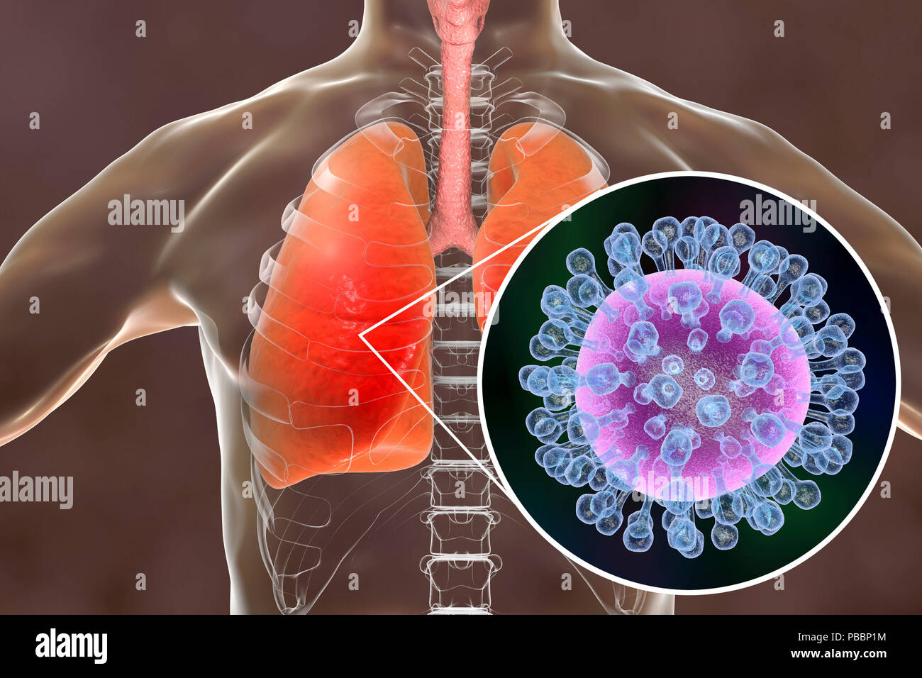Pneumonia caused by flu, computer illustration. Pneumonia is one of the common complications of a flu infection. Stock Photo