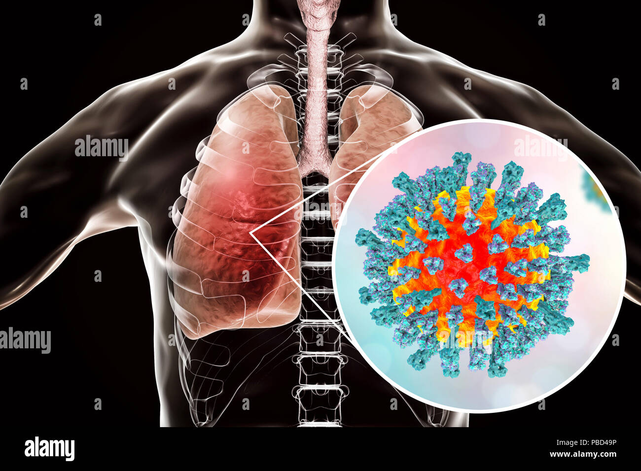 Pneumonia caused by measles viruses, conceptual computer illustration. Measles virus, from the Morbillivirus group of viruses, consists of an RNA (ribonucleic acid) core surrounded by an envelope studded with surface proteins haemagglutinin-neuraminidase and fusion protein, which are used to attach to and penetrate a host cell. Measles is a highly infectious itchy rash with a fever. It mainly affects children, but one attack usually gives life-long immunity. Pneumonia is one of common complications of measles. - Stock Image