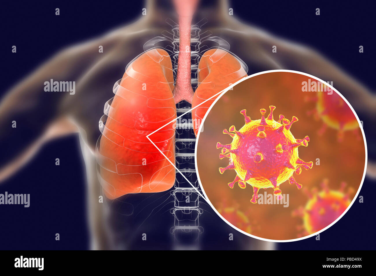 MERS virus infection of lungs, conceptual illustration. MERS (Middle East respiratory syndrome) is a viral respiratory illness caused by the MERS-associated coronavirus (MERS-CoV). Formerly known as novel coronavirus, MERS was first identified in Saudi Arabia in 2012. Most people infected with MERS develop severe acute respiratory illness with symptoms of fever, cough, and shortness of breath. - Stock Image