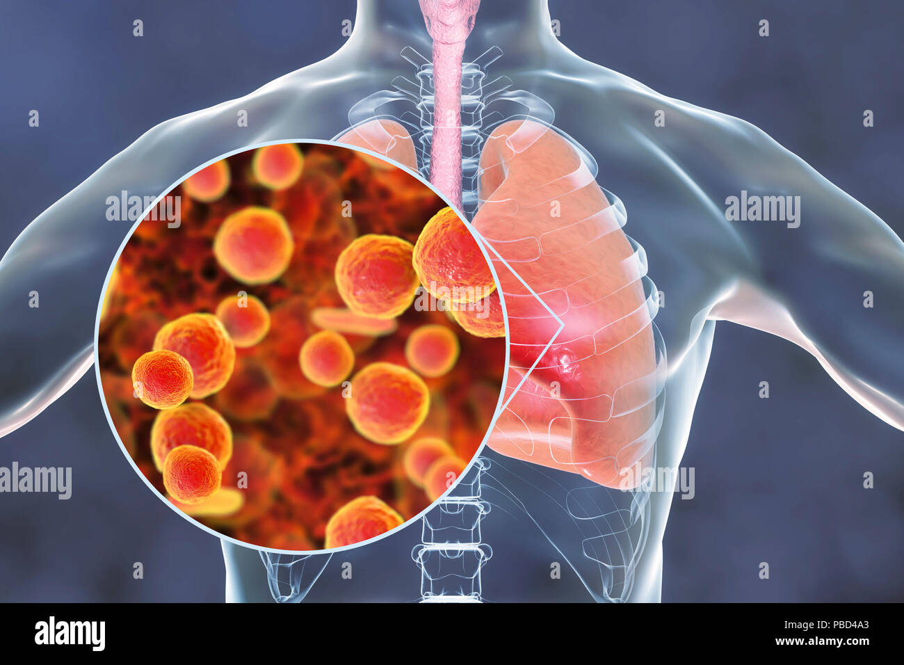 Pneumonia caused by Mycoplasma pneumoniae bacteria, conceptual computer illustration. - Stock Image