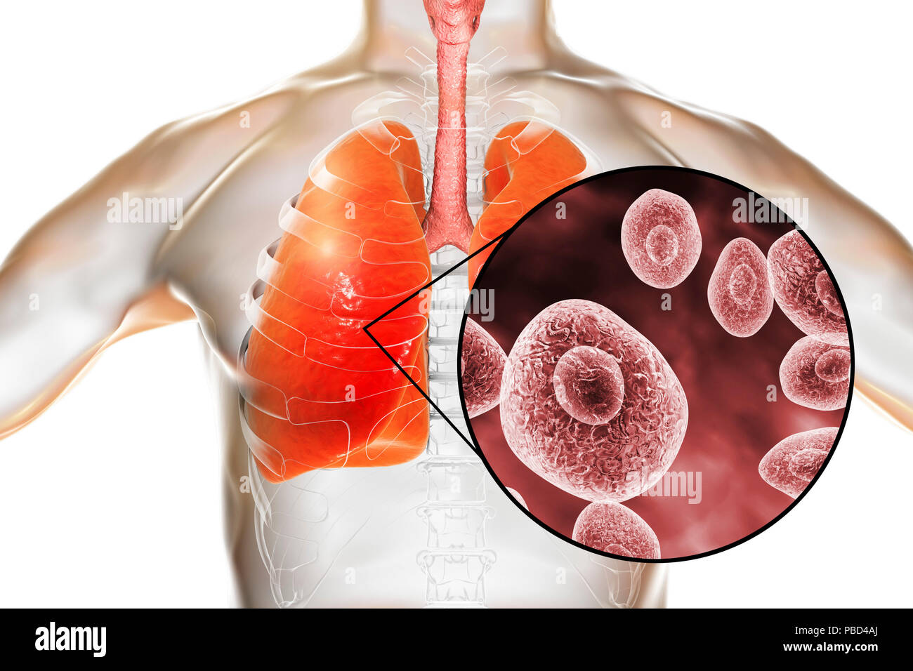 Pneumocystis pneumonia, conceptual computer illustration. This lung infection is the most common opportunistic illness in people infected with HIV (Human Immunodeficiency Virus) and is caused by the fungus Pneumocystis jaroveci (previously P. carinii). Treatment involves the use of antibiotics and bed rest. - Stock Image