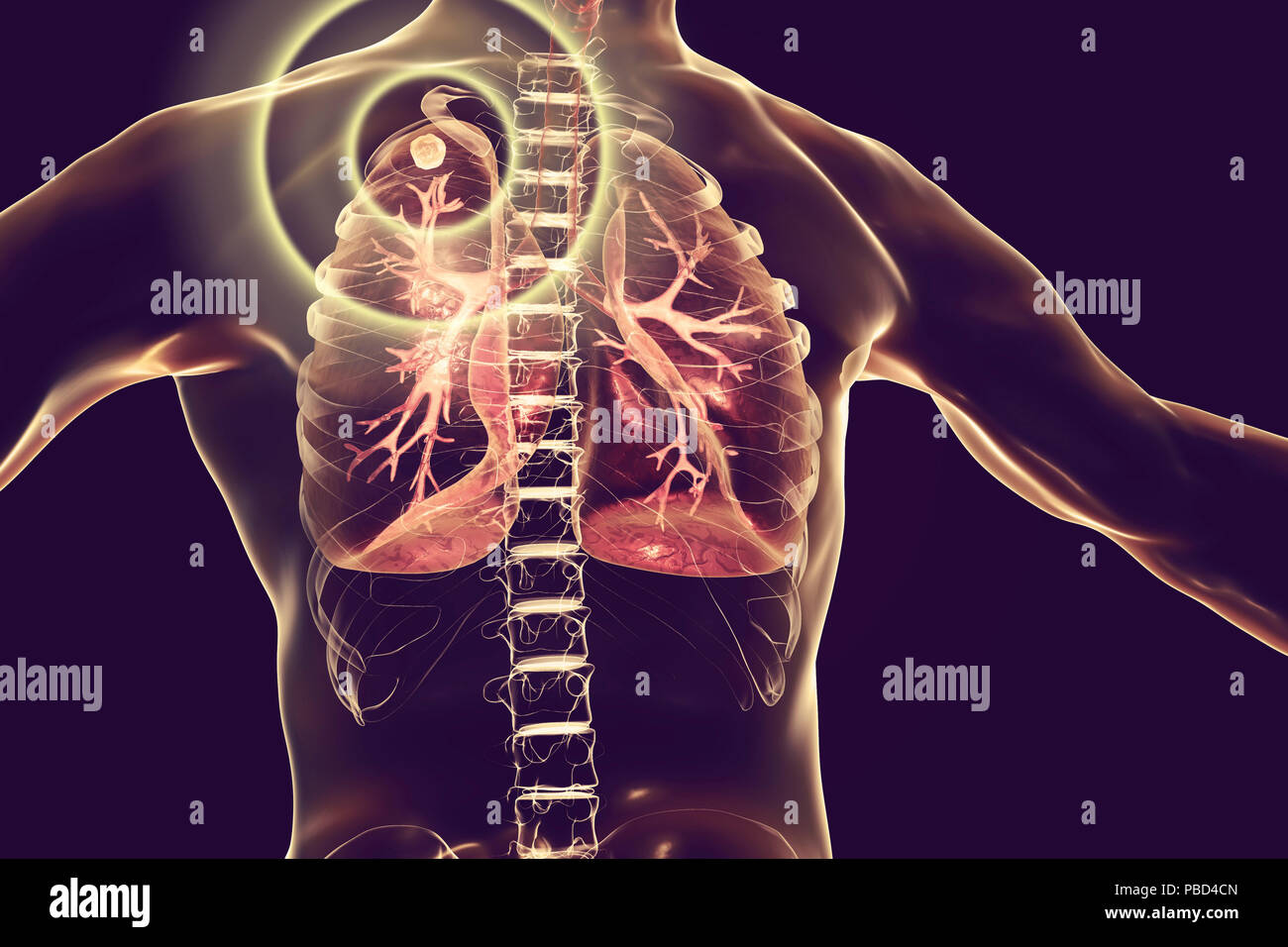 Treatment and prevention of tuberculosis, conceptual illustration. - Stock Image