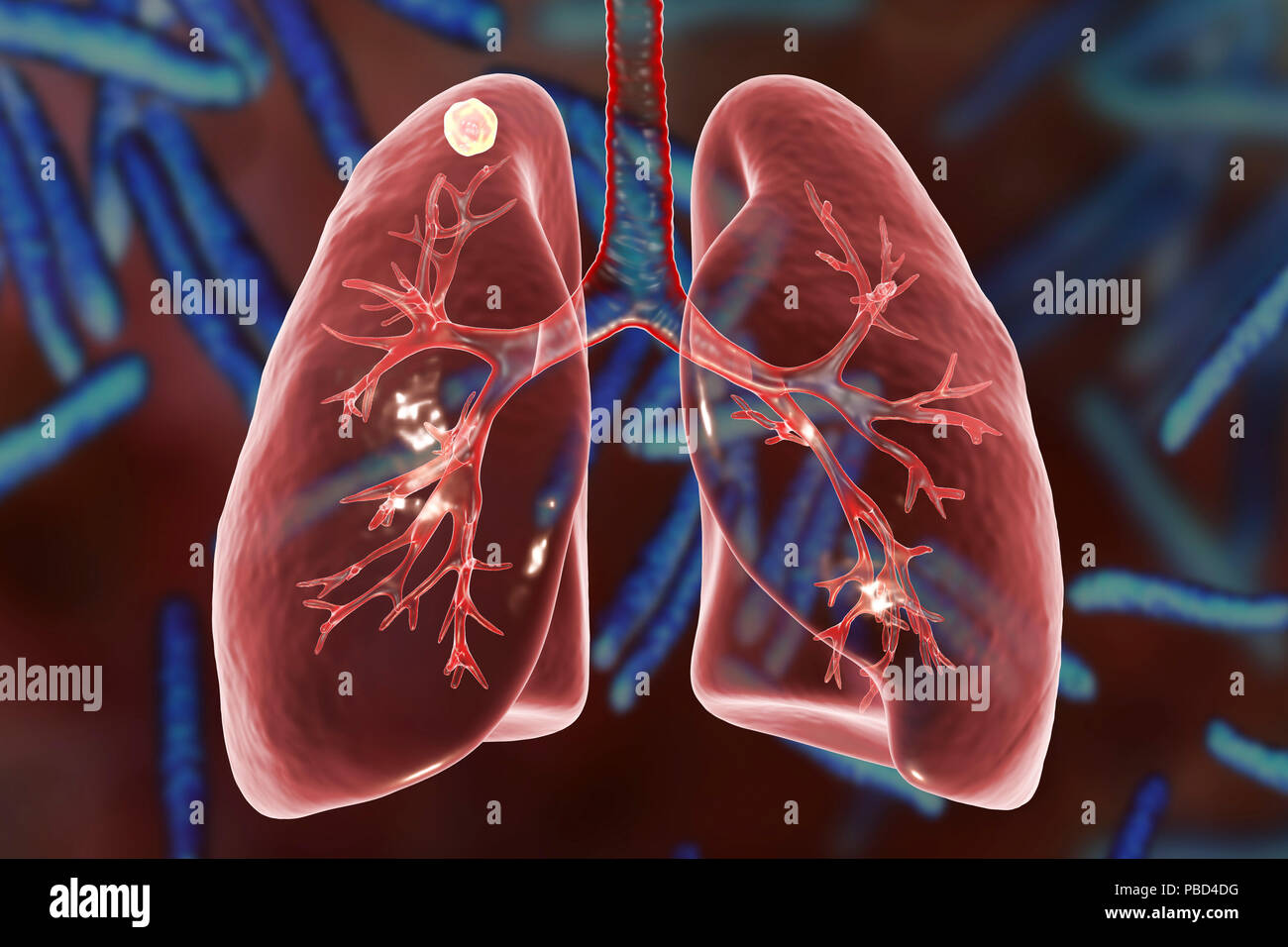 Secondary tuberculosis infection. Computer illustration showing ...