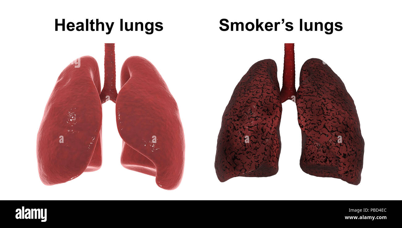 healthy and smoker s lungs computer illustration stock photo