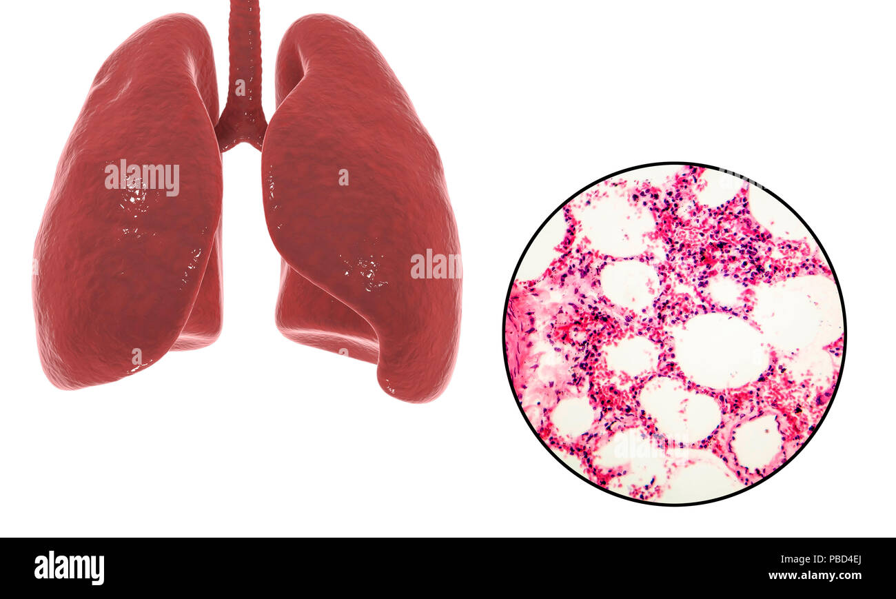 Computer Illustration Showing Human Lung Anatomy And A Light