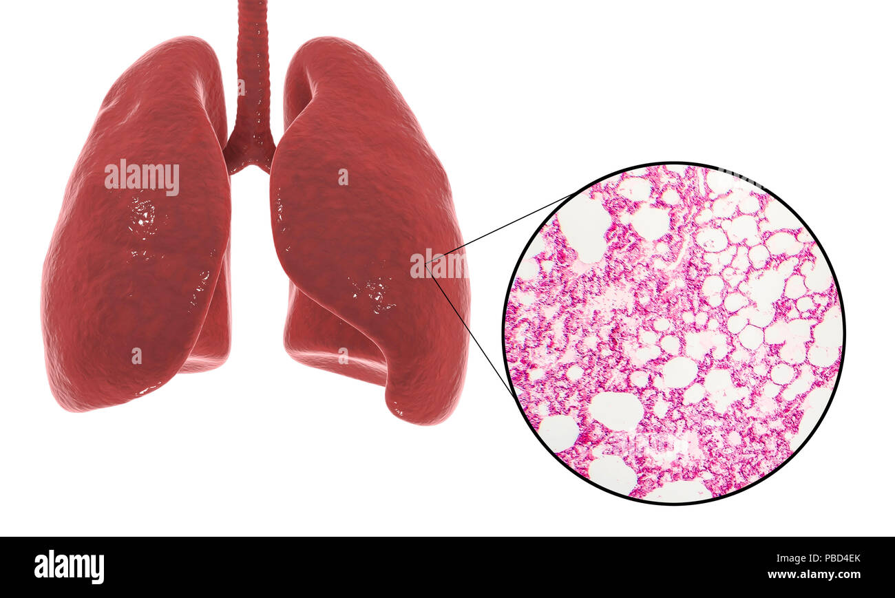 Computer illustration showing human lung anatomy and a light micrograph of a section through healthy lung tissue showing alveoli (air sacs, white). The alveoli are the site of gaseous exchange, where oxygen enters the blood and carbon dioxide is removed. - Stock Image