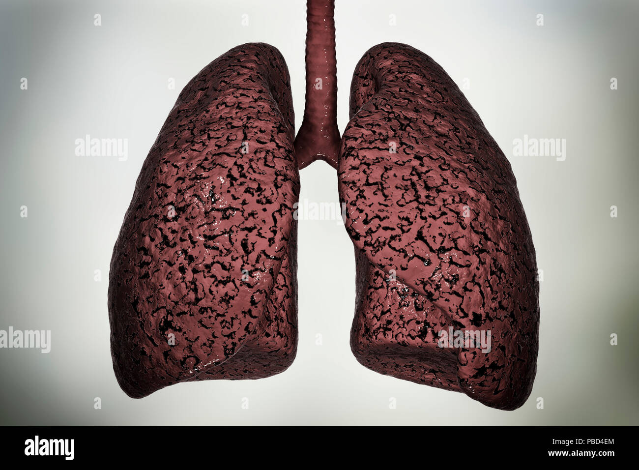 Smoker's lungs, computer illustration. Stock Photo