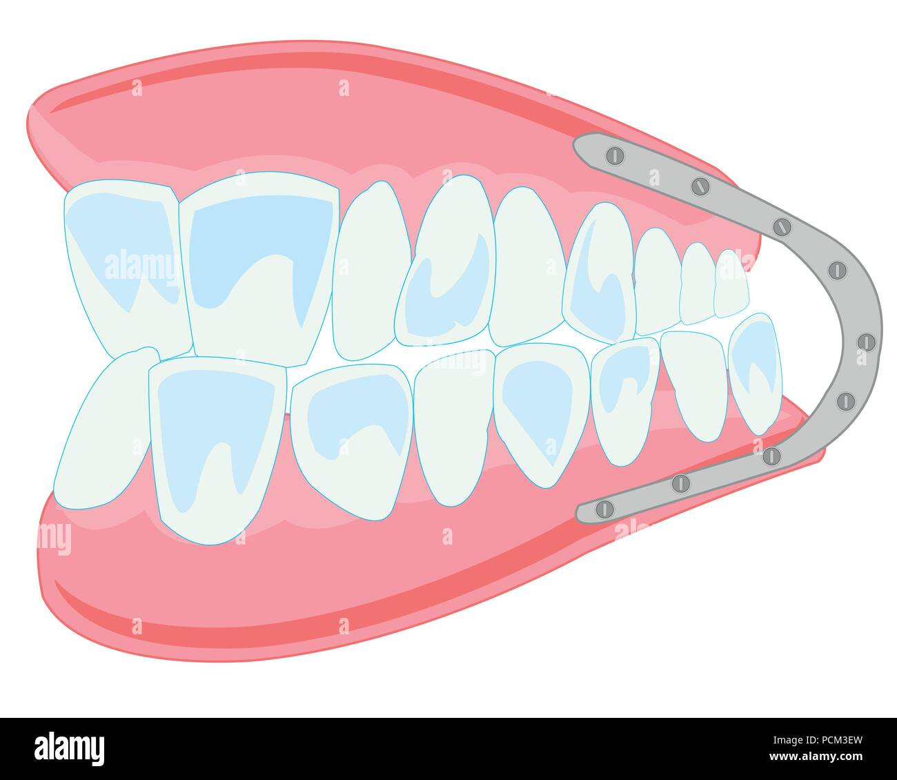 Denture on white background is insulated - Stock Image