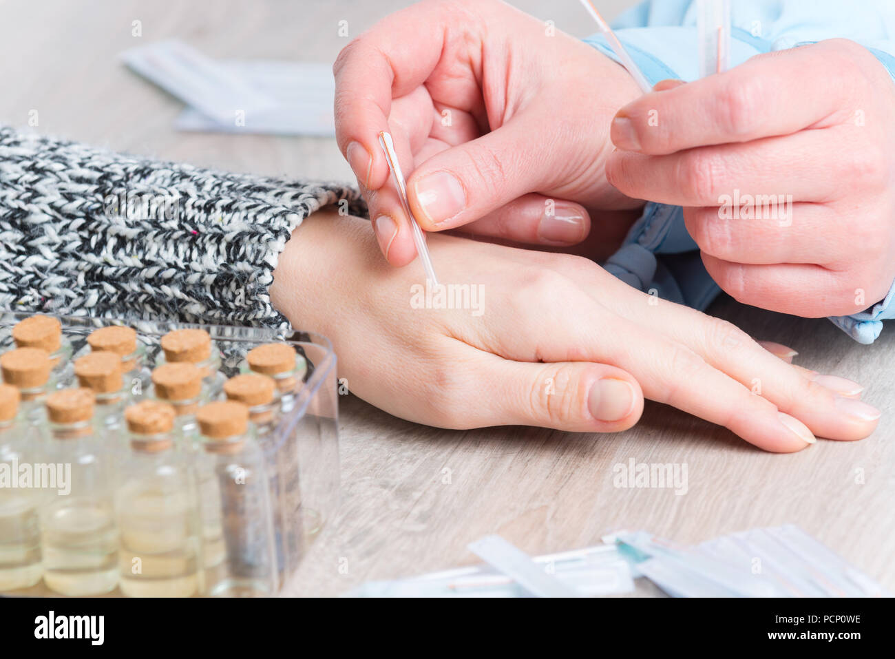 Acupuncture therapist applying acupuncture needle to her client's hand - Stock Image