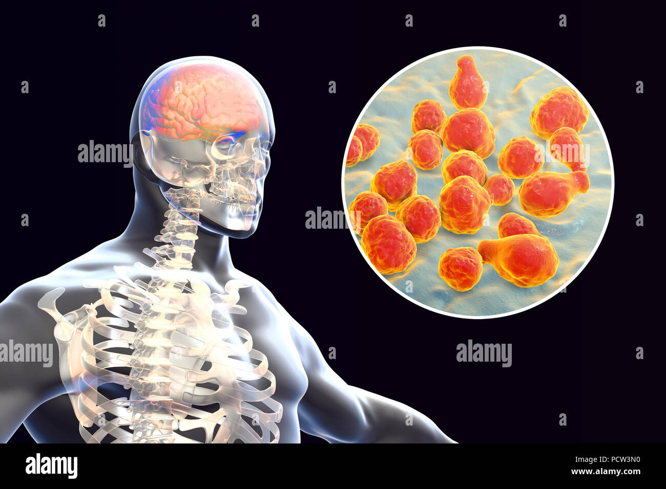 Meningitis caused by fungi Cryptococcus neoformans, computer illustration. C. neoformans is a yeast-like fungus that reproduces by budding. An acidic mucopolysaccharide capsule completely encloses the fungus. It can cause the disease cryptococcosis, especially in immune deficient patients, such as those with AIDS (acquired immunodeficiency syndrome). The infection may cause meningitis, and may also be located in the lungs, skin or other body regions. The most common clinical form is meningoencephalitis. - Stock Image