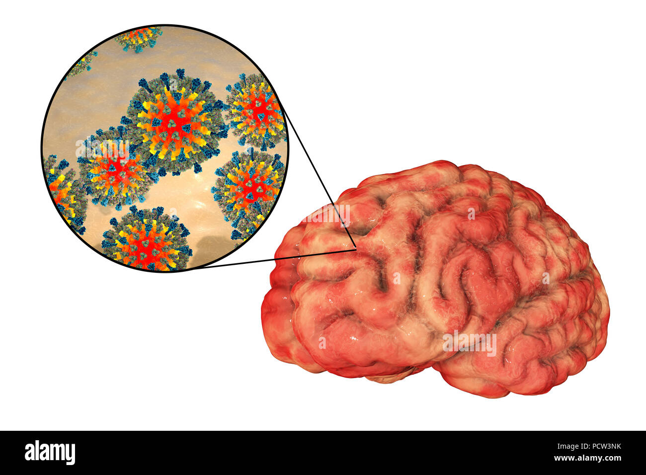 Encephalitis caused by measles viruses, computer illustration. This virus, from the Morbillivirus group of viruses, consists of an RNA (ribonucleic acid) core surrounded by an envelope studded with surface proteins haemagglutinin-neuraminidase and fusion protein, which are used to attach to and penetrate a host cell. Measles is a highly infectious itchy rash with a fever. It mainly affects children and one attack usually gives life-long immunity. Encephalitis is one of complications of measles infection. - Stock Image