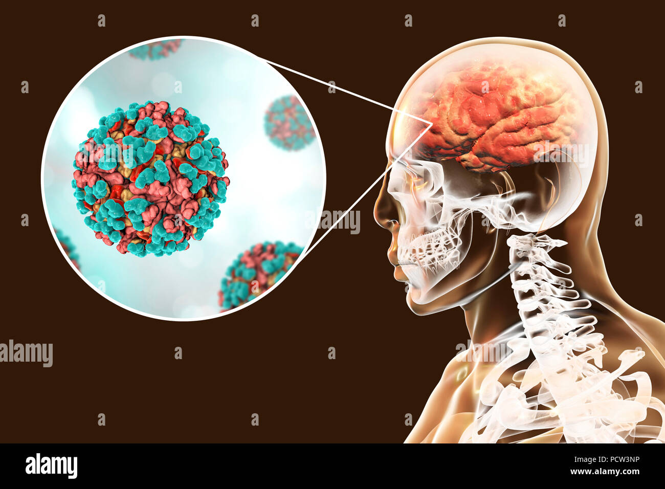 Venezuelan equine encephalitis viruses infecting human brain, computer illustration. This mosquito-borne virus can cause fatal brain and spinal cord inflammation in horses. It can also cause a fatal fever in humans. In viruses, the capsid is the protein shell that encloses the genetic material. A capsid consists of subunits called capsomeres that self-assemble to form the shell seen here. One of the functions of the capsid is to aid the transmission of the viral genetic material into host cells. - Stock Image
