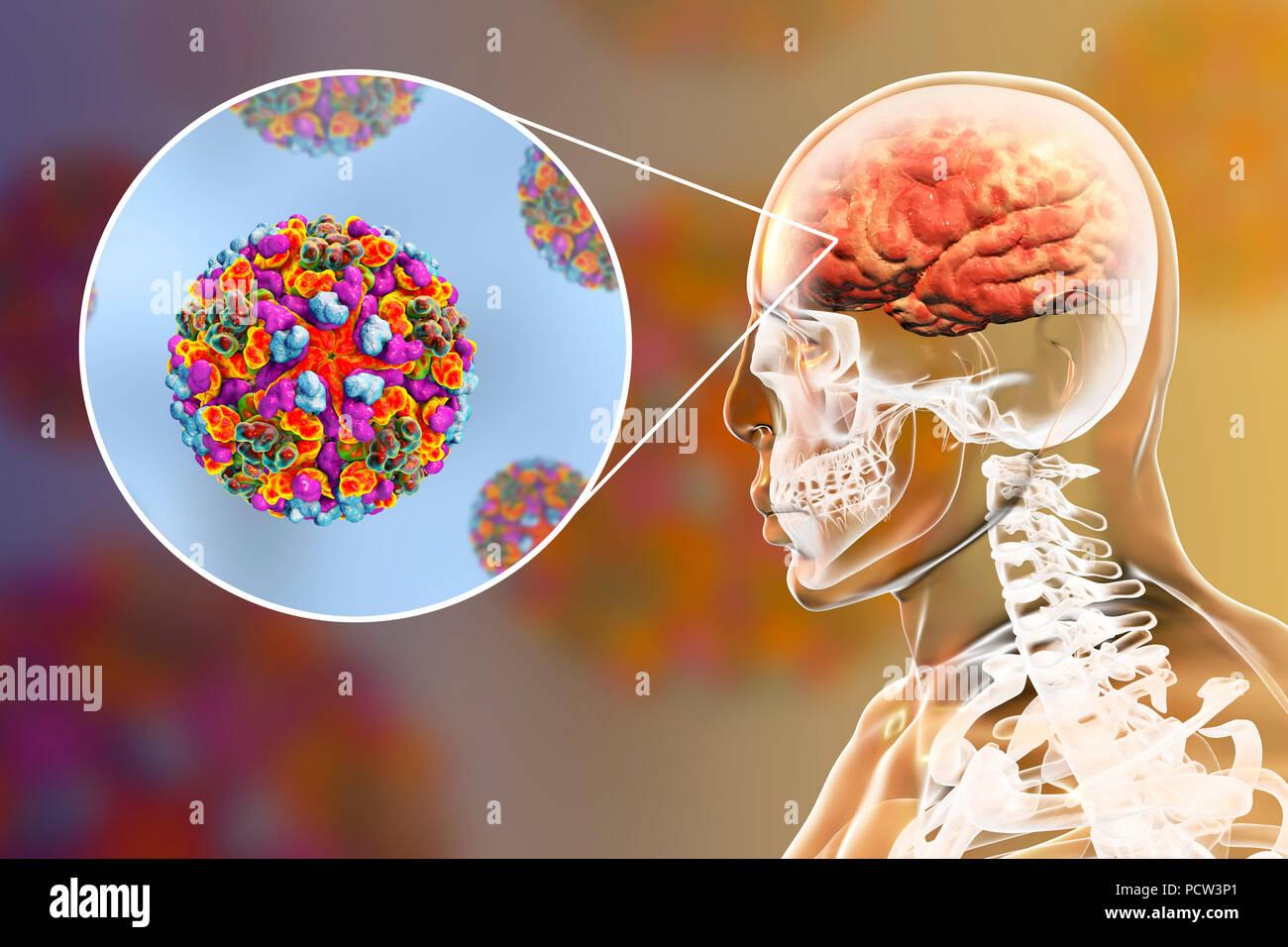 Western Equine Encephalitis Viruses Infecting Human Brain Computer