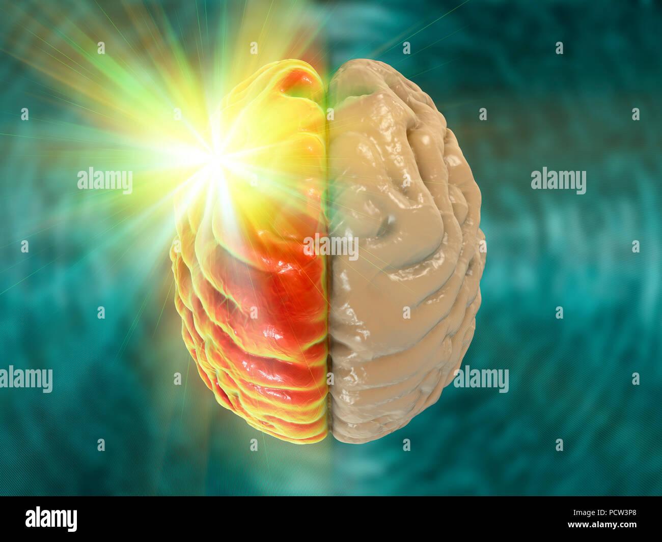 Migraine, conceptual computer illustration. - Stock Image