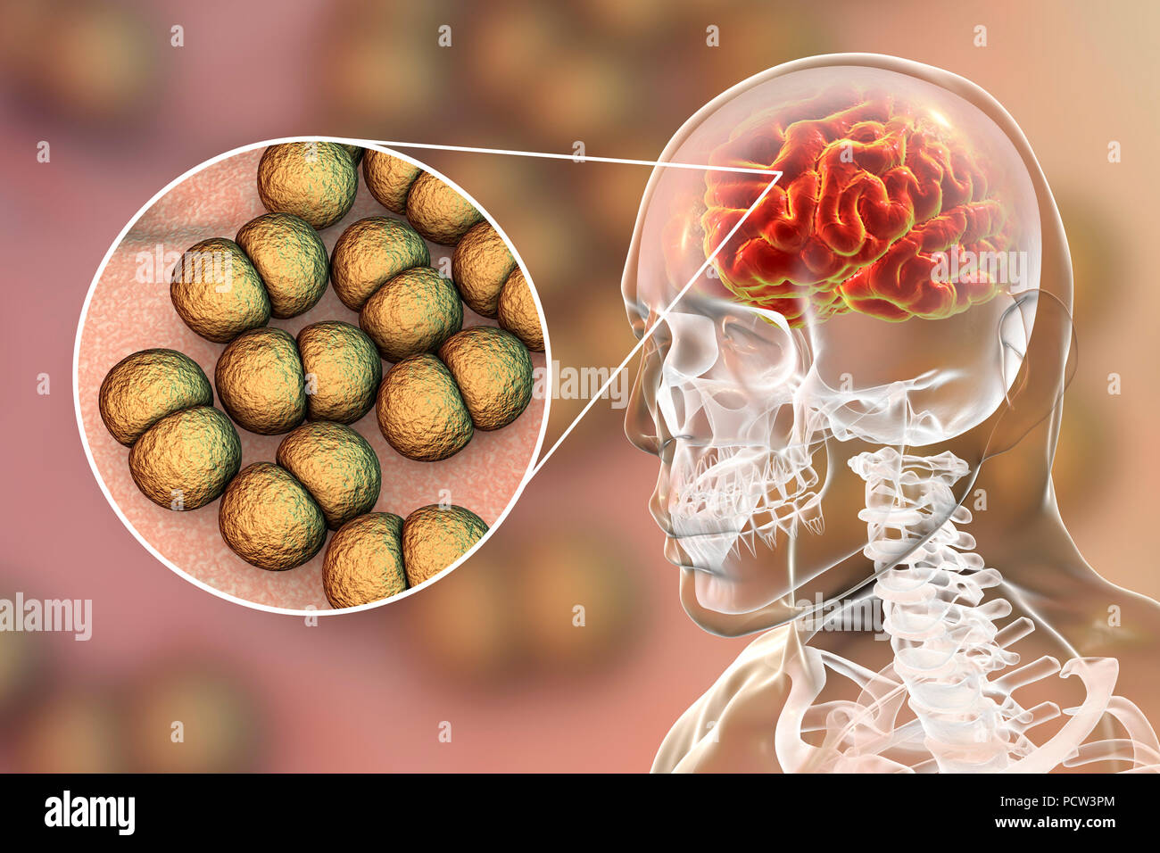 Neisseria meningitidis brain infection, computer illustration. N. meningitidis are gram-negative diplococci (spherical bacteria arranged in pairs), transmitted via the respiratory route. In most people they cause either asymptomatic infections or non-severe nasopharingitis, but can also cause severe meningitis and generalised infection (meningococcaemia), particularly in children. Their surface is covered with pilli which take part in attachment of bacteria to cells and surfaces. - Stock Image