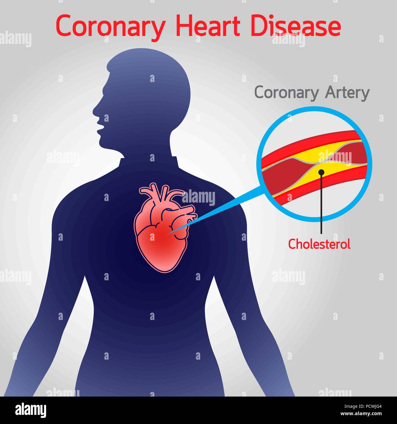 Pencil heart disease diagram circuit connection diagram coronary heart disease stock photos coronary heart disease stock rh alamy com causes of heart disease ccuart Image collections