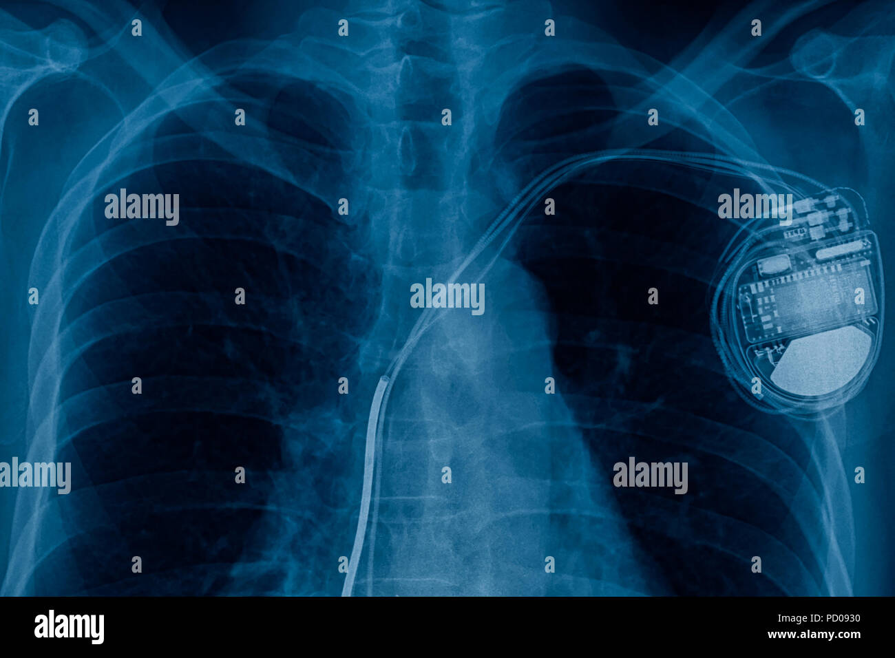 Pacemaker Stock Photos & Pacemaker Stock Images - Alamy