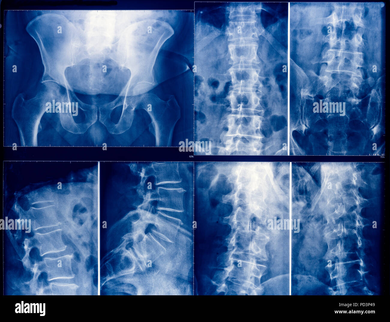 Blue coloured X-ray pictures of a human pelvis and spinal column - Stock Image