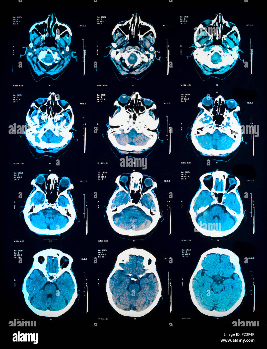 Sequence of horizontal sections of a female human brain, MRI scans, magnetic resonance imaging, Stock Photo