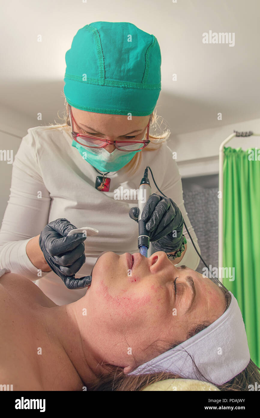 Beautician performs a needle mesotherapy treatment on a woman face. - Stock Image