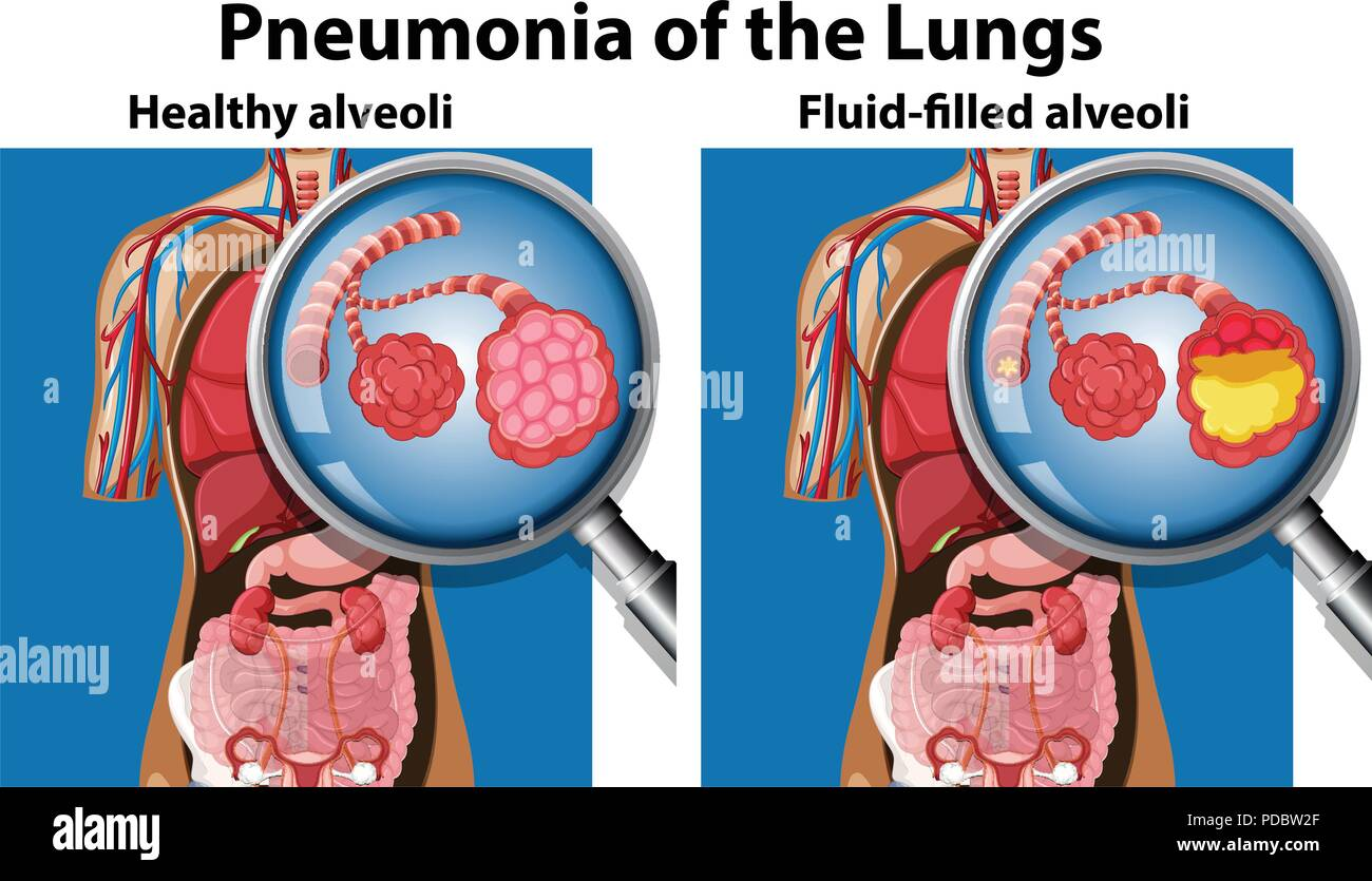 Pneumonia of the lungs concept illustration - Stock Image