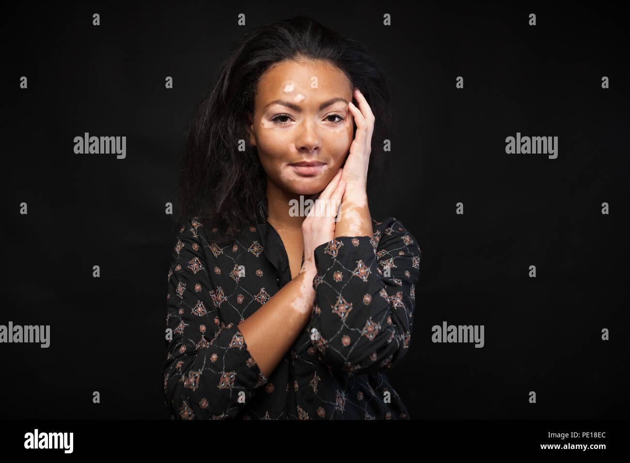 Beautiful African Girl With Skin Problems Vitiligo Concept Stock Photo Alamy