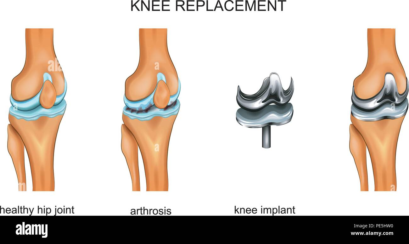 vector illustration of a total knee replacement - Stock Image