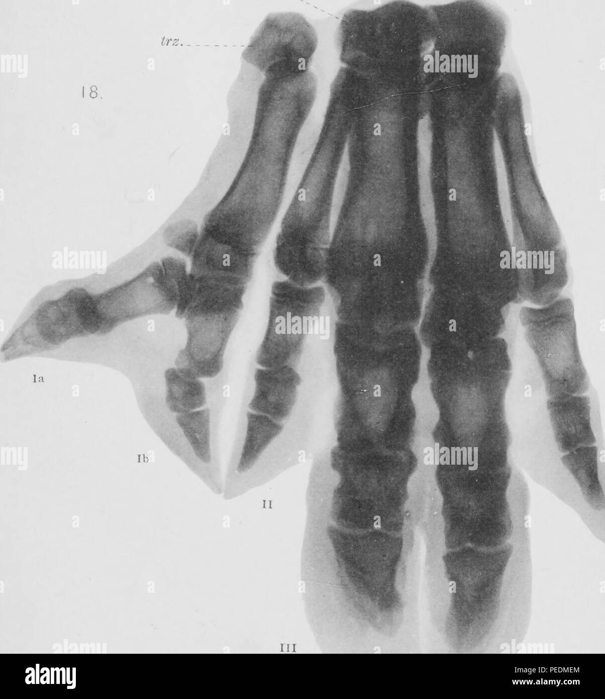 Heliotype of an x-ray showing a polydactyl pig's manus (lower limb), 1863. Courtesy Internet Archive. () - Stock Image