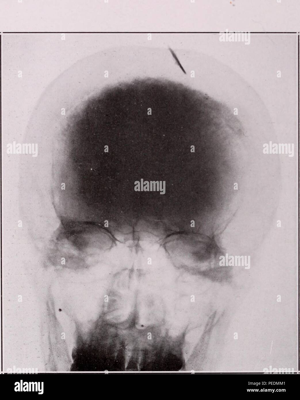 Black and white X-ray showing the anterior-posterior view of a human head with a piece of a knife blade, lodged in the cortex and pointing toward the right side, 1921. Courtesy Internet Archive. () - Stock Image