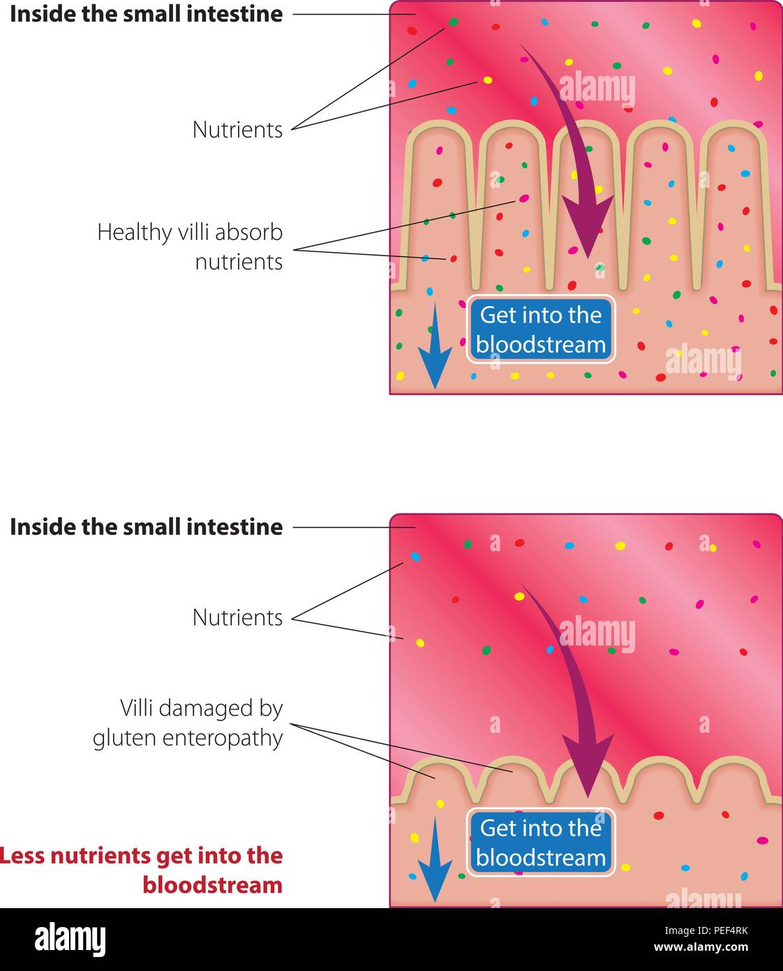 Absorption Of Nutrients In The Small Intestine Healthy And Damaged