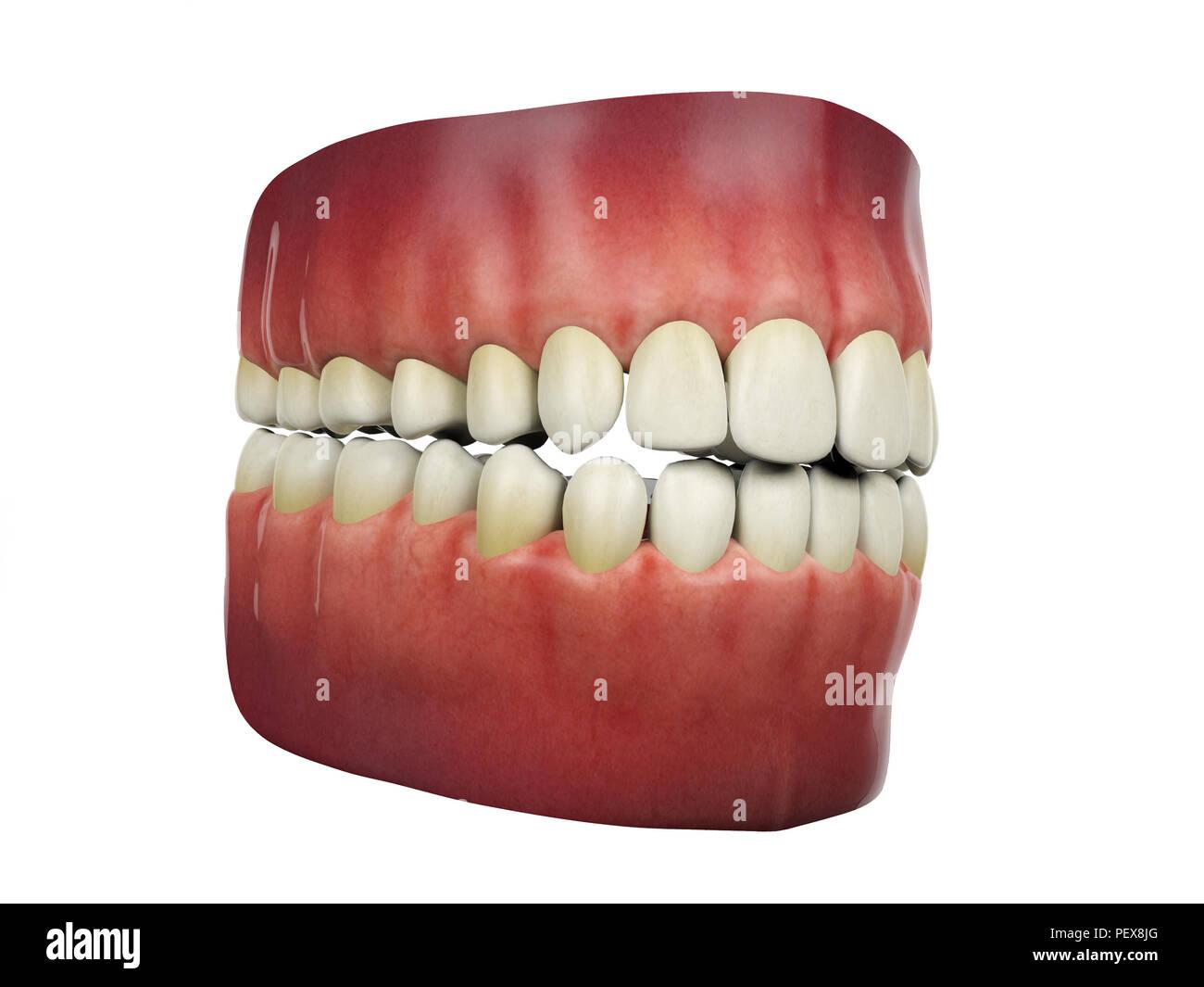 Human Teeth And 3d Stock Photos Human Teeth And 3d Stock Images