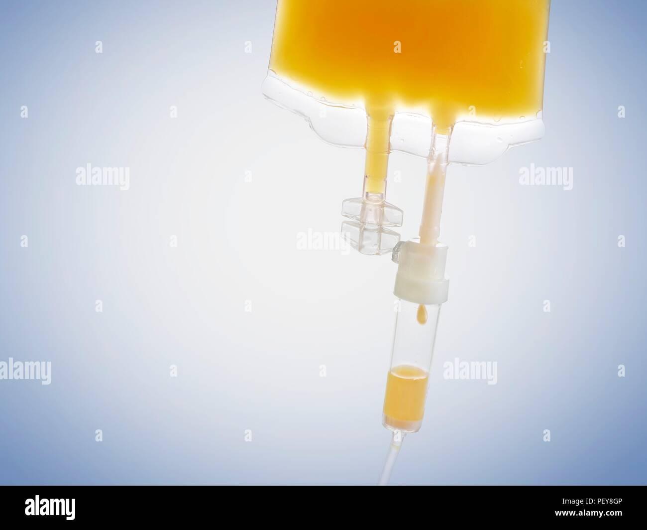 IV bag with orange juice, studio shot. Stock Photo