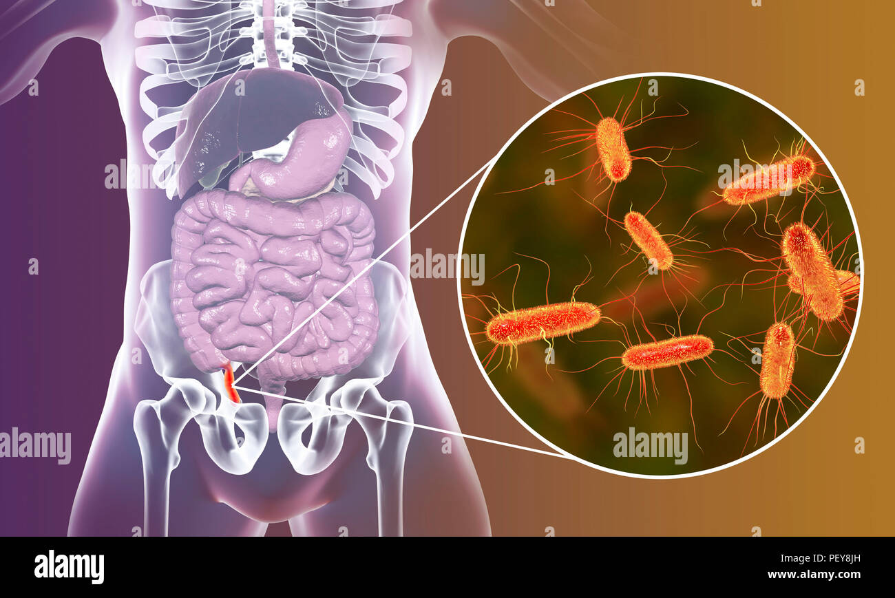 Appendicitis. Illustration of a human appendix, showing it red and inflamed in appendicitis and a close-up view of bacteria, the causative agents of appendicitis. Gram-negative rod-shaped bacterium Escherichia coli is the commonest causative agent of acute and chronic appendicitis. - Stock Image