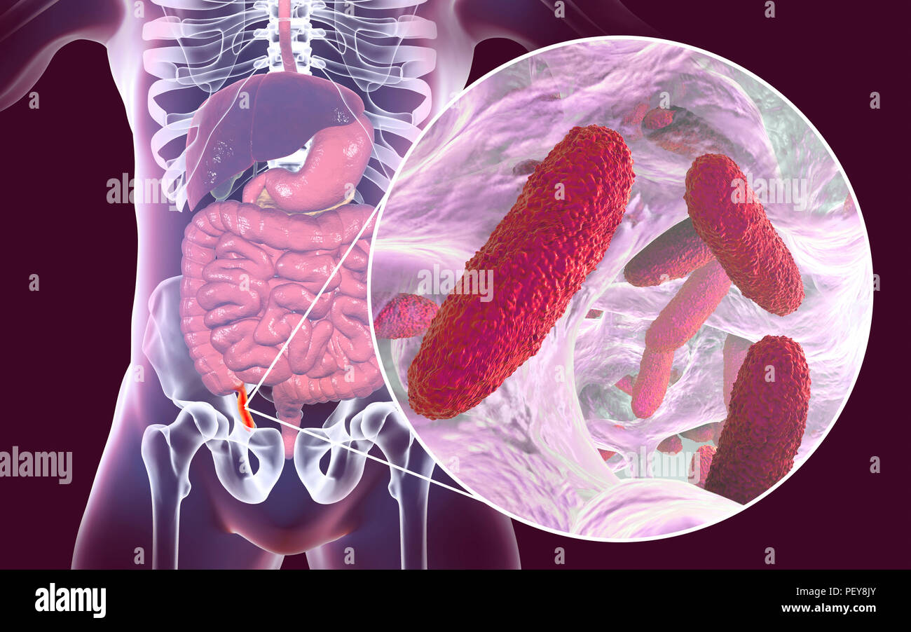 Appendicitis. Illustration of a human appendix, showing it red and inflamed in appendicitis and a close-up view of bacteria, the causative agents of appendicitis. Rod-shaped bacterium Klebsiella pneumoniae is one of the causative agents of acute and chronic appendicitis. - Stock Image