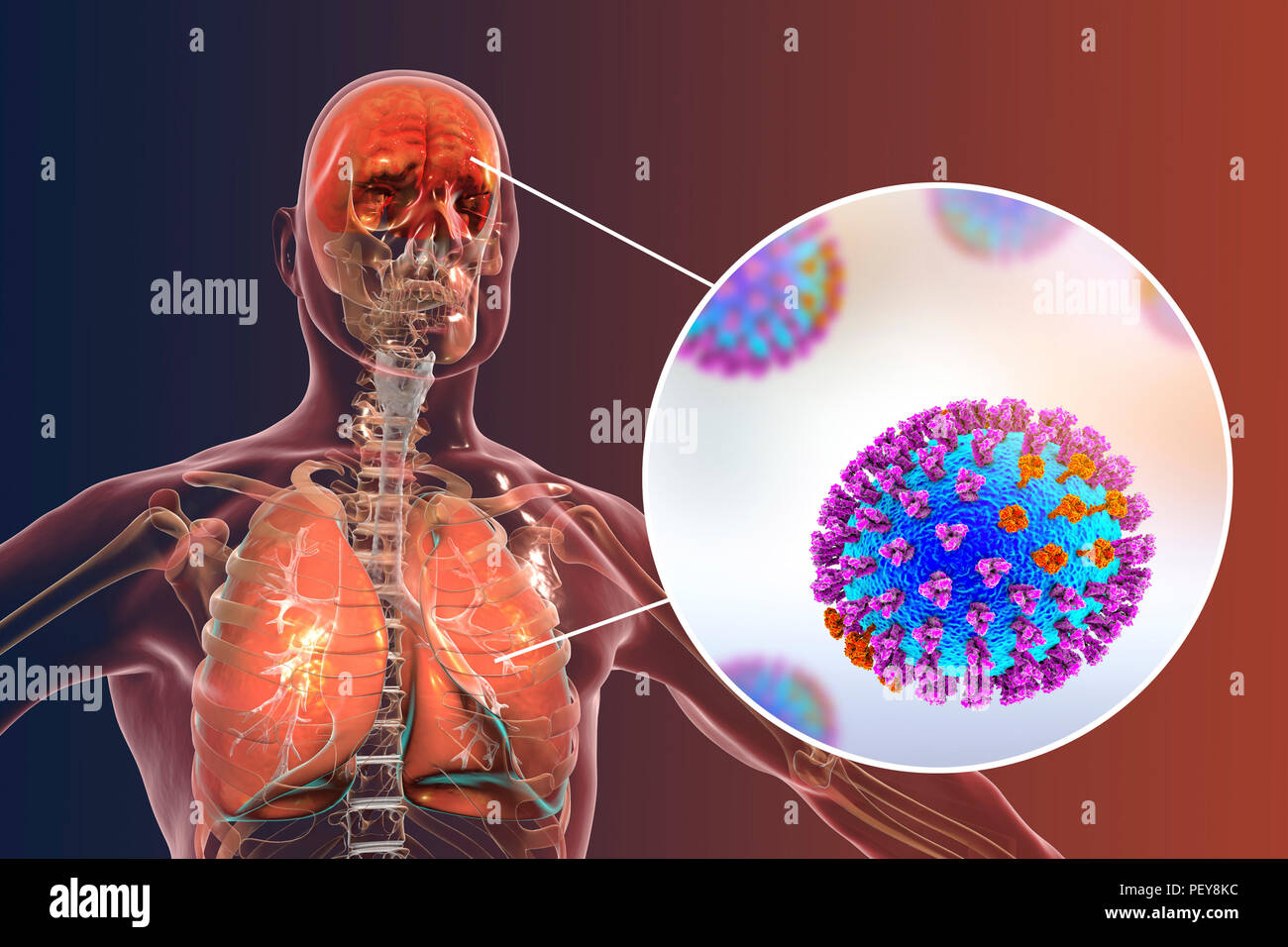 Computer illustrations showing the common complications of flu infection, such as encephalitis and pneumonia. - Stock Image