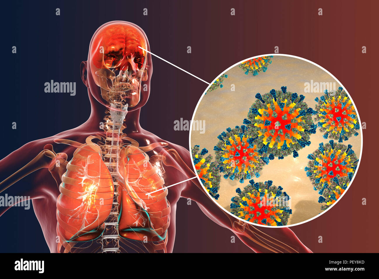 Computer illustrations showing the common complications of measles infection, such as encephalitis and pneumonia. - Stock Image