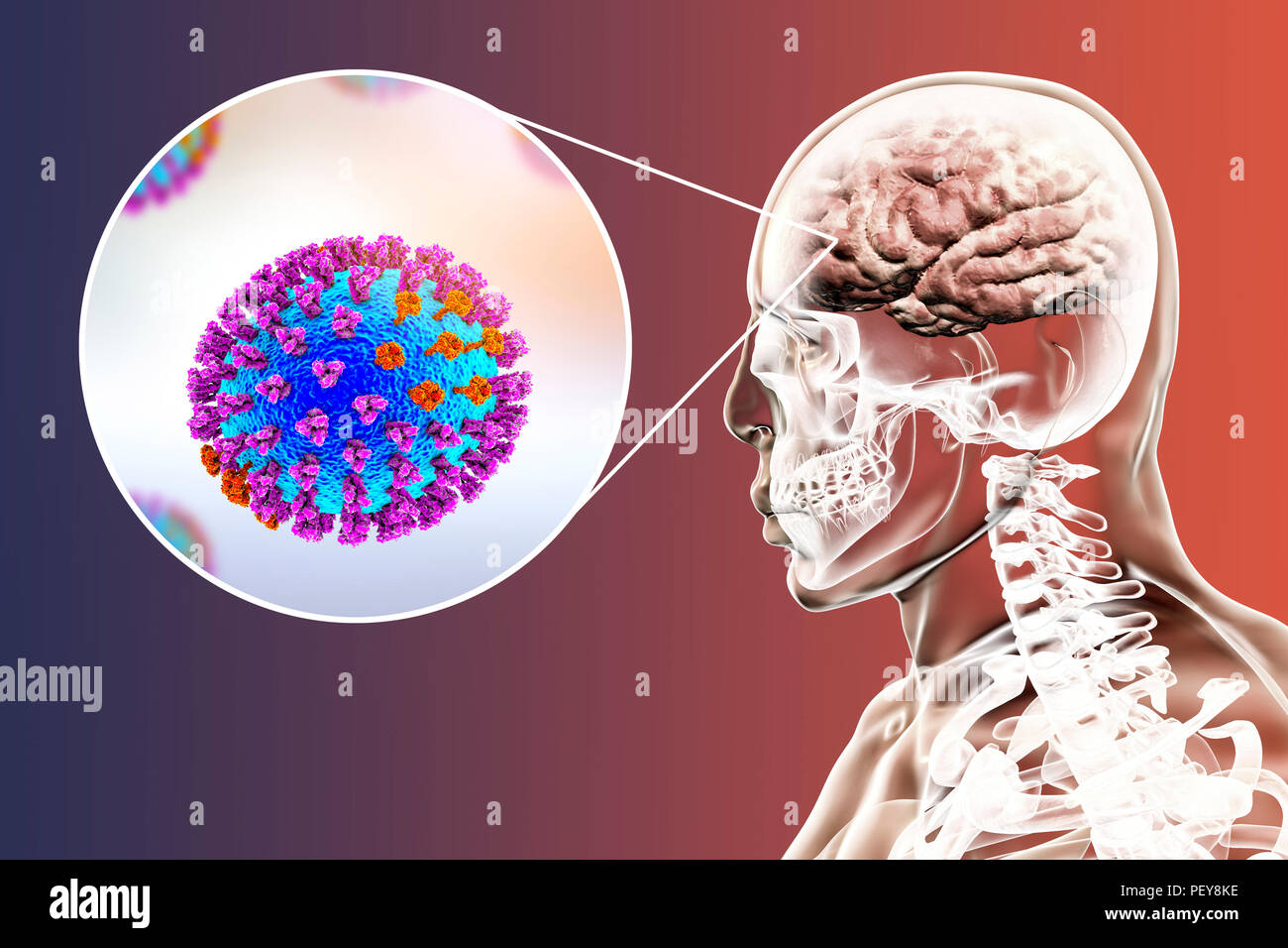 Computer illustrations showing the common complication of flu infection, such as encephalitis. - Stock Image