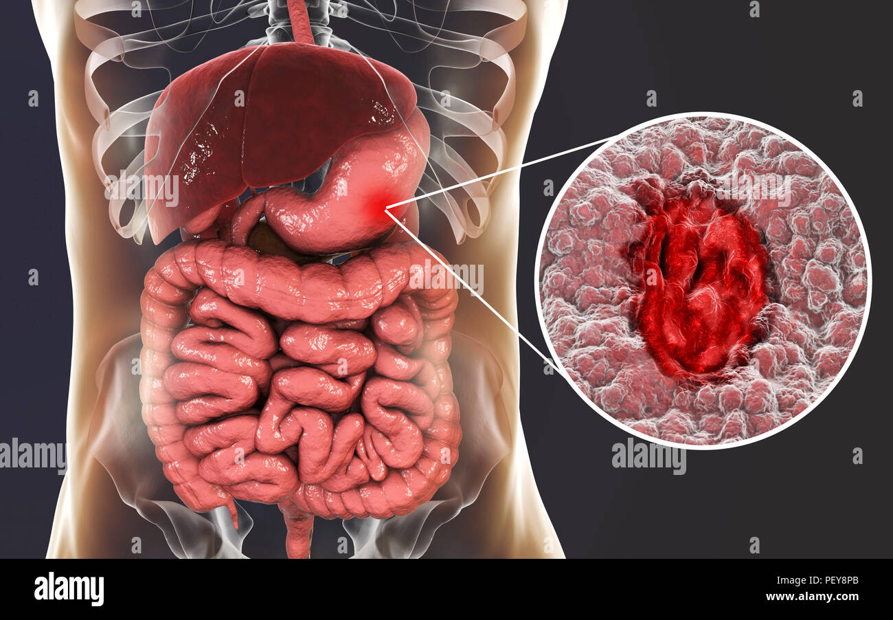 Ulcer Stock Photos & Ulcer Stock Images - Alamy