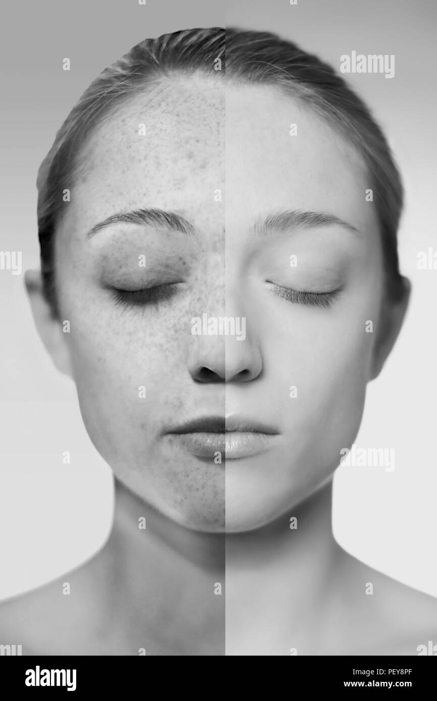 Composite image of showing the damage sun exposure has done to a woman's skin. - Stock Image