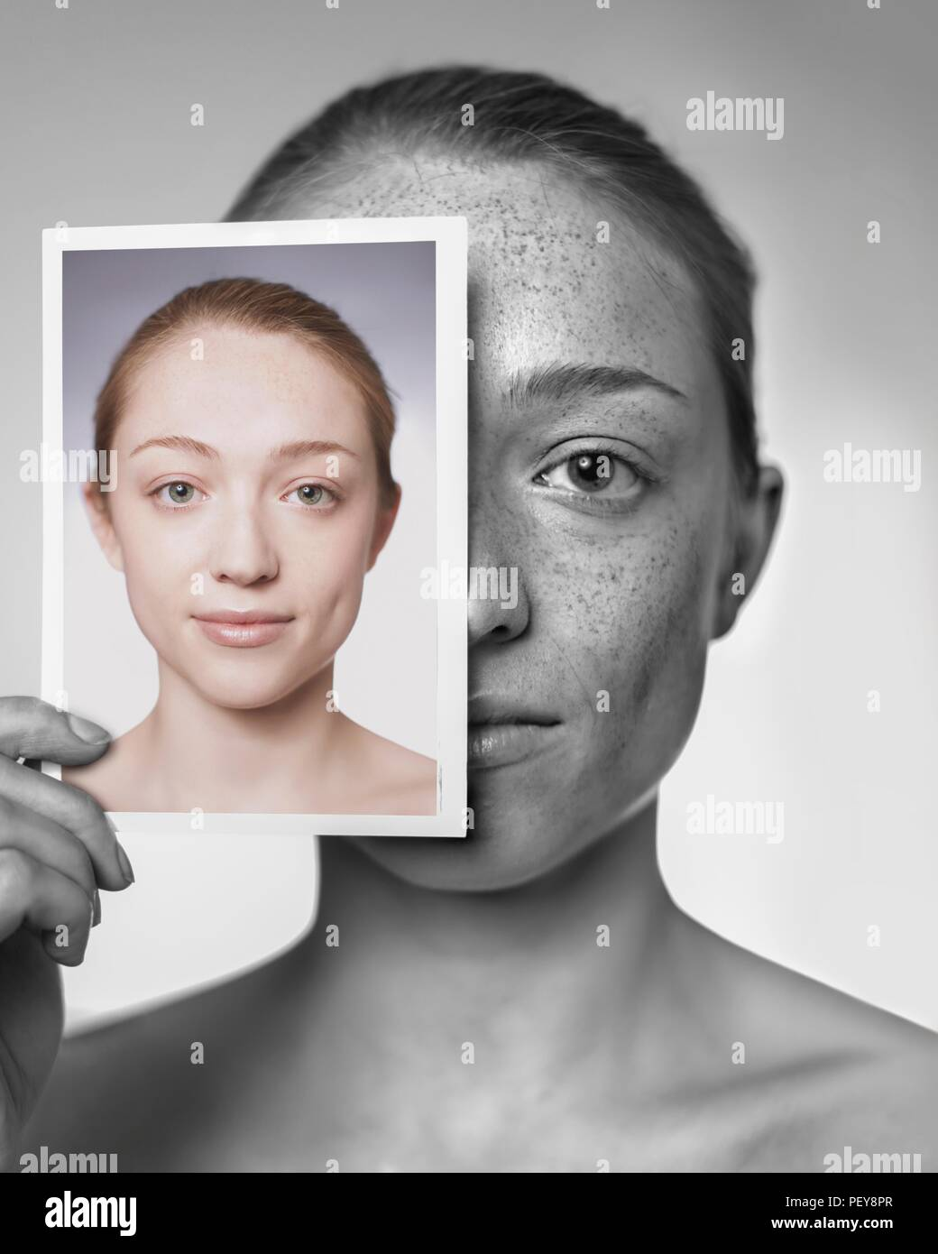 Sun damage. Woman showing the damage sun exposure has done to her skin. - Stock Image